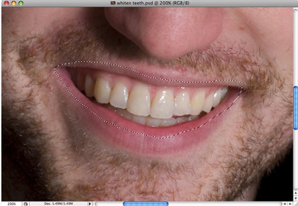 How to Whiten and Brighten Teeth in Photoshop